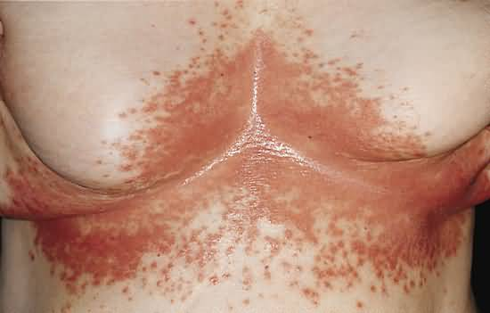 candidiasis Cutaneous Candidiasis